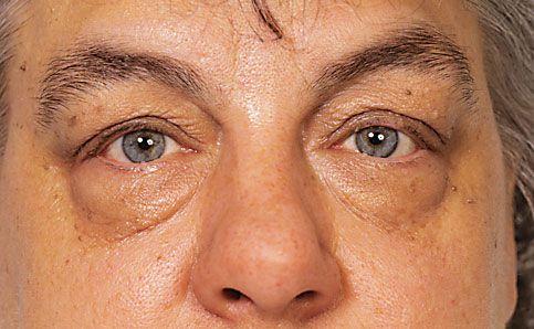 Augenschatten abdecken vorher