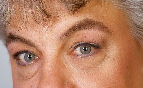 Augenschatten mit Camouflage abdecken 2