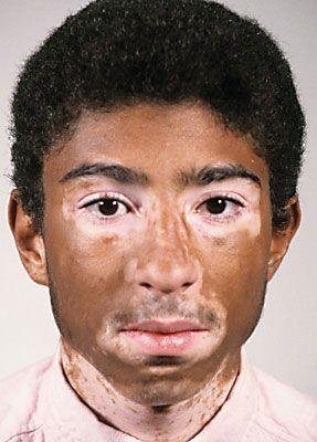 Camouflage Make up Vitiligo 1