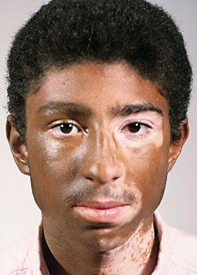 Camouflage Make up Vitiligo 2