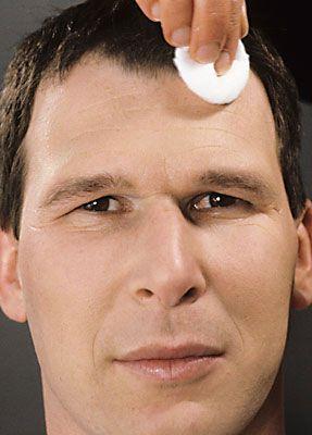 Glatze kleben 1