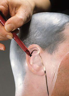 Glatze kleben 10