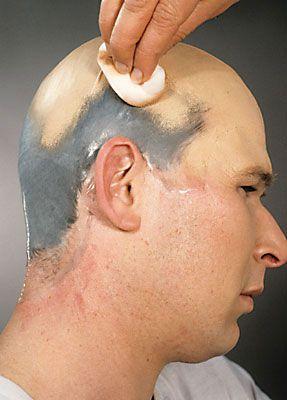 Glatze kleben 23