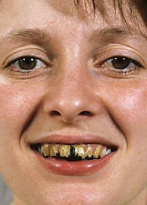 tooth_enamel_a_00_web